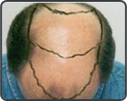 Crown Balding