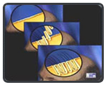 Follicular Unit Hair Transplantation