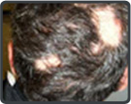 Temporary Hair Loss Treatment