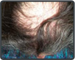 Permanent Hair Loss Treatment