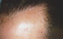 Previous Hair Restoration