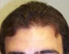 Late Teens Hairline