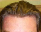 Mid 20's hairline
