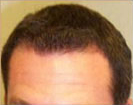 Early 30's hairline