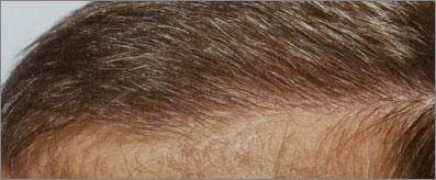 Transplanted Hairline