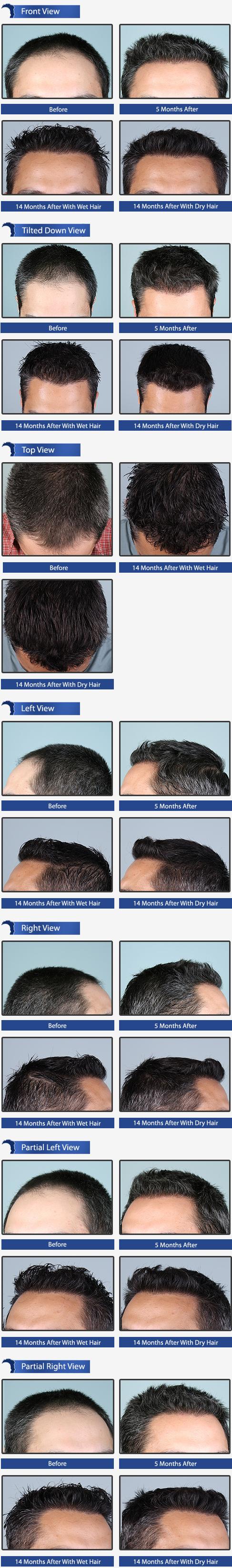 Hair Transplant Surgery Toronto
