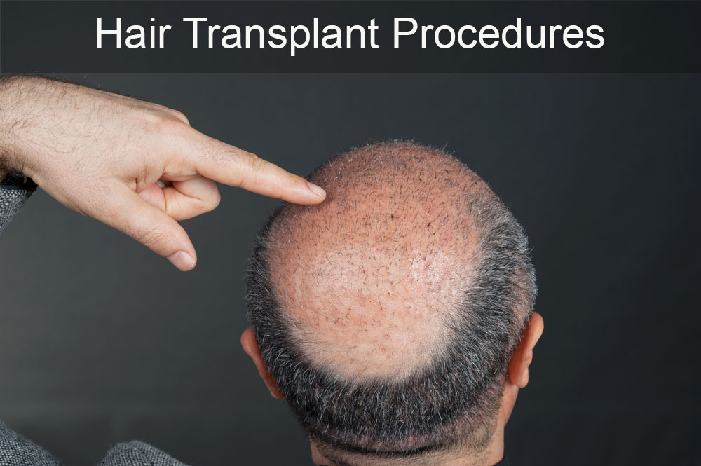 Follicular Unit Transplantation