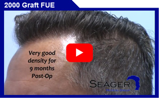 2000 Graft FUE Hair Transplant Client Results Video