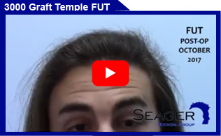 3000 Graft FUT Temple & Hairline Hair Transplant Client Video