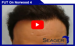 Strip (FUT) Hair Transplant on Norwood 4 hair loss pattern Client Results Video