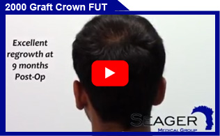 2000 Graft FUT Crown Hair Transplant Client Video