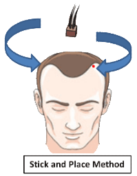 Stick and place hair implantation method