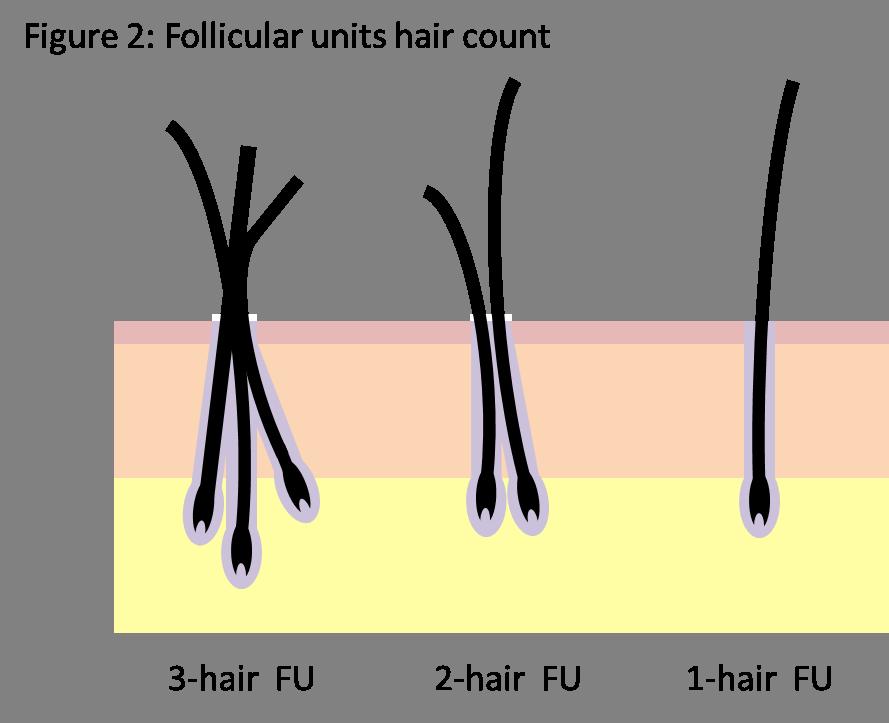 Hair follicle groupings