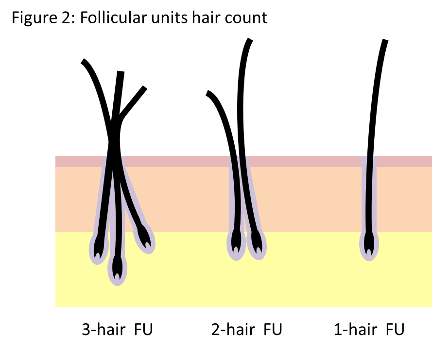 Hair follicle groupings