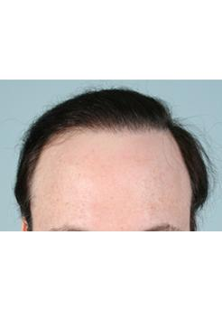 After Hair Transplant Revision