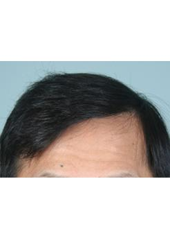 After Hair Transplant2 Sessions (Areas)
