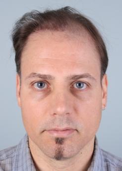 Before Hair TransplantRevision