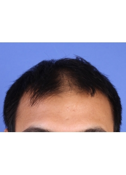 Before Hair Transplant 2 Sessions (Areas)