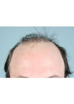 Before Hair Transplant Revision