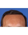 After Hair Transplant  Front