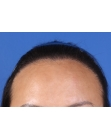 After Hair Transplant  Hairline