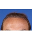 After Hair Transplant  2 Sessions (Areas)