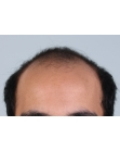 Before Hair Transplant  Front