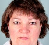 Hair TransplantHair Thinning
